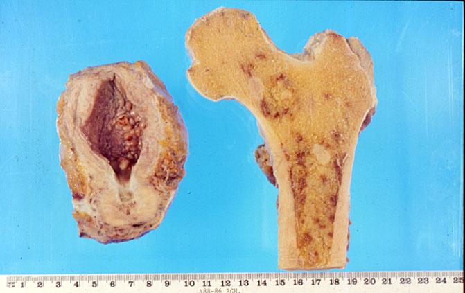 carcinoma della prostata metastatico