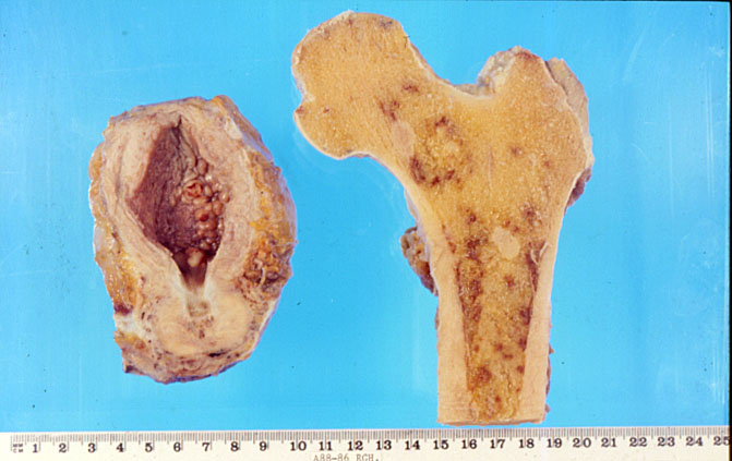 tumore prostata metastasi speranza di vita de
