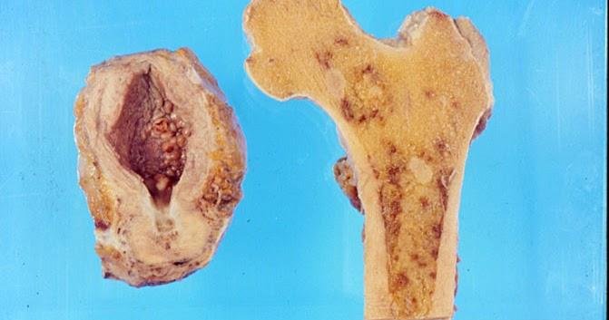 metastasi osseo per tumore alla prostata