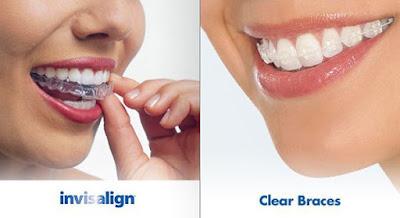 Niềng răng hiệu quả tại Nha Khoa Đăng Lưu