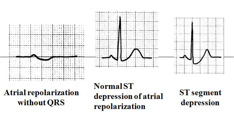 Dr Smith S Ecg Blog Atrial Repolarization Wave Mimicking