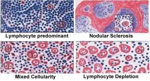 klasifikasi histopatologi limphoma hodgkin