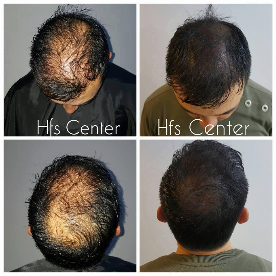 Saç Simülasyonu Nedir