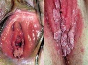 Daging Tumbuh Di Kemaluan Wanita | Tanda-tanda Kutil Kemaluan