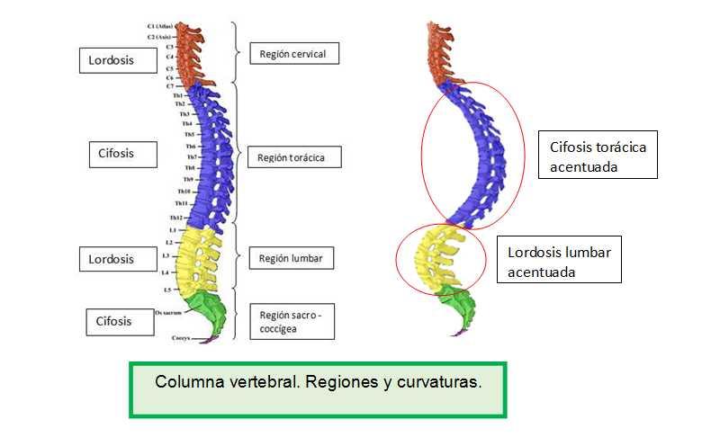 lordosis lumbar