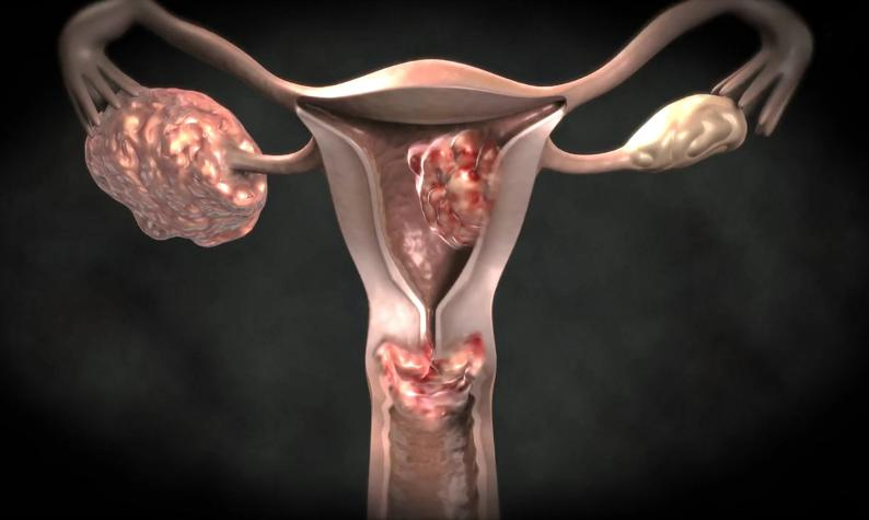 Advanced Uterine Cancer Symptoms