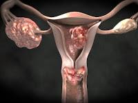 Advanced Uterine Cancer Symptoms