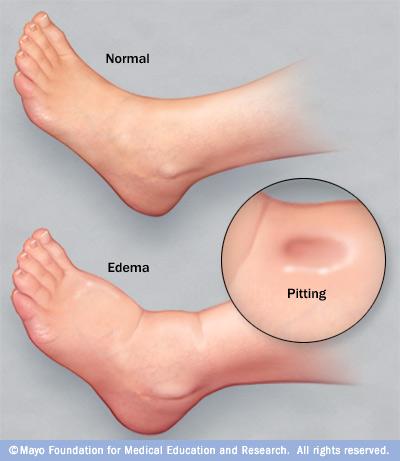 Gravidez barriga a na edema durante