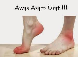 dahulu disebut dengan istilah gout yang disebabkan pengendapan dari asam urat pada persen Jamu Tradisional Untuk Asam Urat Tinggi