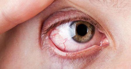 Petua nak hilangkan sakit mata tanpa ubat.