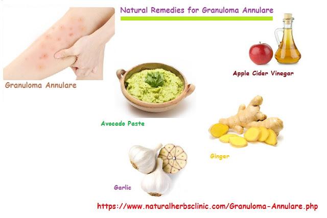 Granuloma Annulare Herbal Treatment