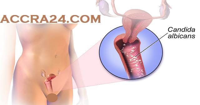 Det bedste tip til stramning af vagina Hvordan man forhindrer, kæmper, stopper-2787