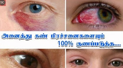Home Remedies for Eye Problems in Tamil