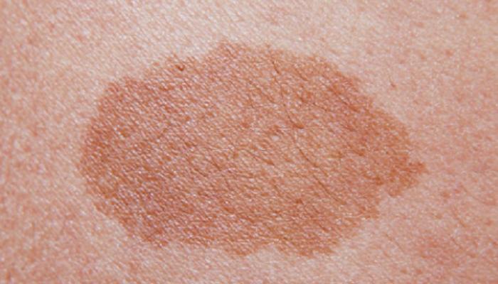 Feuermal Behandlung Ursache Entfernen Hautkrankheit
