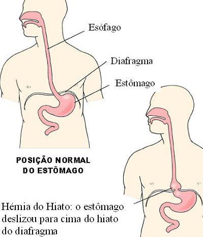 Rio de sa de a h rnia de hiatal h rnia de hiato tratamento e cuidados - Alimentos prohibidos para la hernia de hiato ...