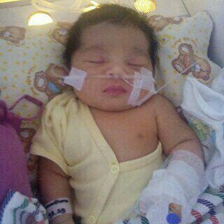 Bayi Usia Seminggu Sakit Kelainan Paru-Paru