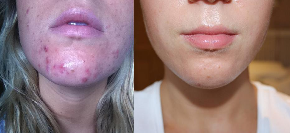 Image Result For Image Result For Aloe Vera And Tea Tree Oil For Acne