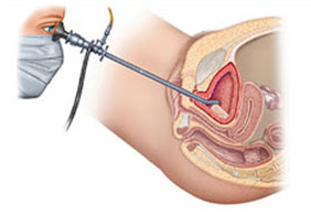 Cystourethroscopy Surgery, Procedure, Uses, side effects
