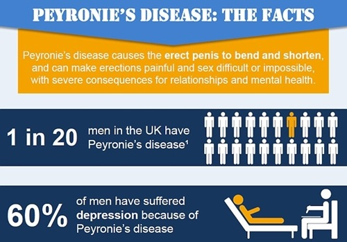 Peyronie's Disease: The Devastating Condition that Affects Millions of Men and Ruin their S*x Lives