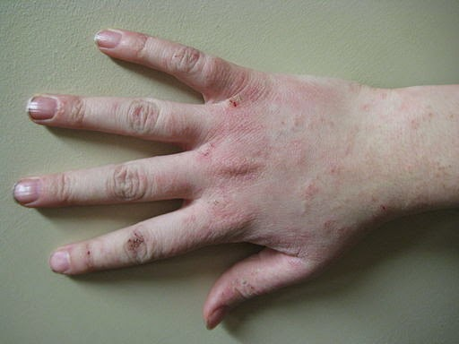 Methylisothiazolinone allergy   DermNet New Zealand