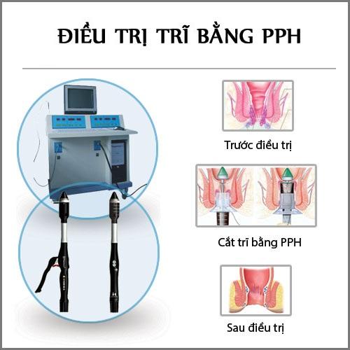 Cắt trĩ bằng phương pháp PPH