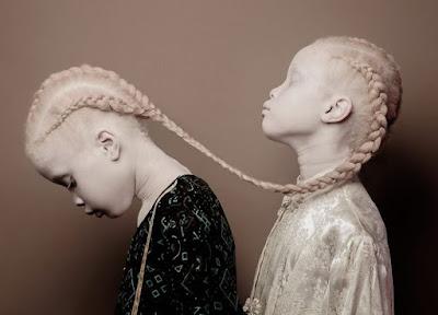 Δίδυμες, 11χρονες και... αλμπίνες: Αυτά είναι τα νέα μοντέλα της Nike