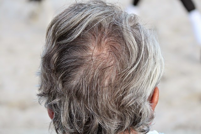 15 Penyebab Rambut Beruban di Usia Muda