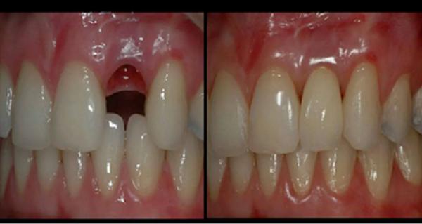 Découverte Médicale: Comment vous Serez en Mesure de Repousser vos Dents