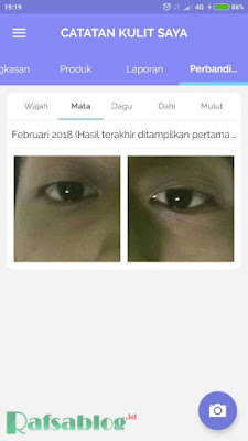Troveskin, Aplikasi Penganalisis Permasalahan pada Kulit Wajah