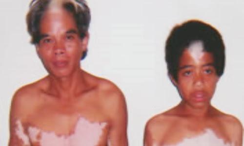 Suku To Balo: Manusi Belang di Pedalaman Barru