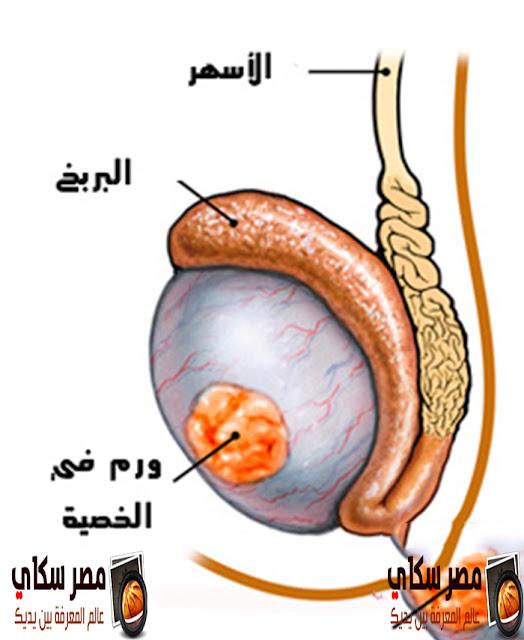 سرطان الخصية وكيفية الوقاية منه والأعراض  Testicular Cancer