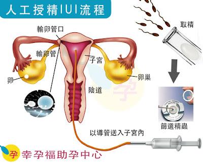 人工授精(Intrauterine insemination, IUI)是一種比較接近自然的受孕方式
