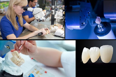 bọc răng sứ có nguy hiểm không -2