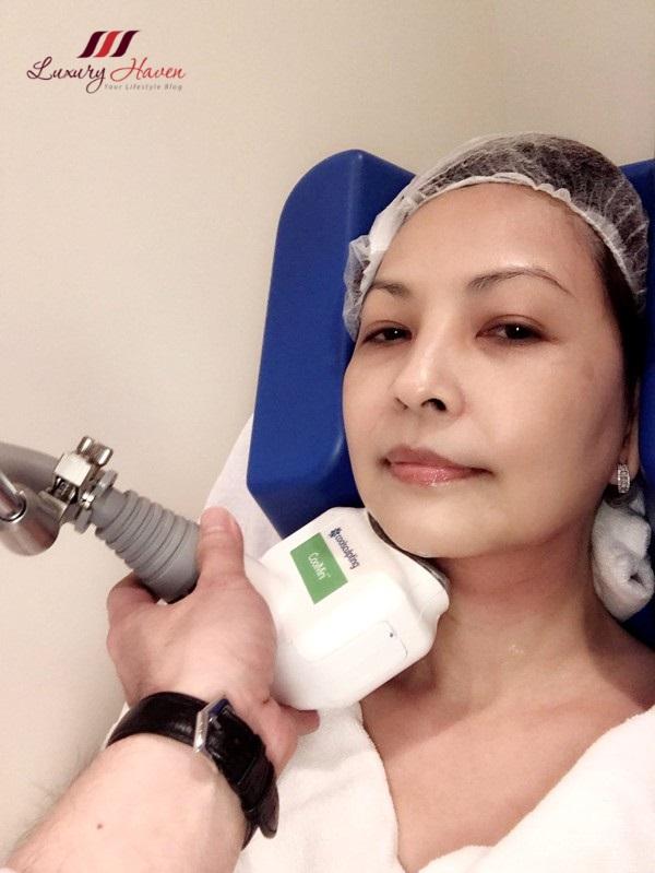 singapore beauty blogger reviews eha clinic zeltiq coolmini