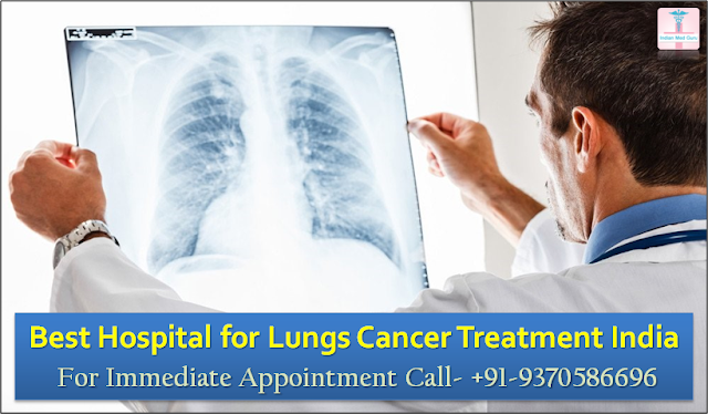 Best Hospital for Lungs Cancer Treatment: Fortis Hospital Delhi