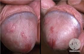 Cara Pencegahan Penyakit Sifilis Atau Raja Singa