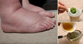 Ceci est l'un des meilleurs remèdes pour soulager l'enflure des pieds