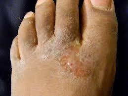 Obat gatal eksim di betis dan sela sela jari kaki