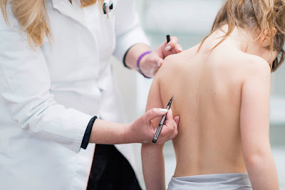 The Different Types of Scoliosis & Their Causes - El Paso Chiropractor