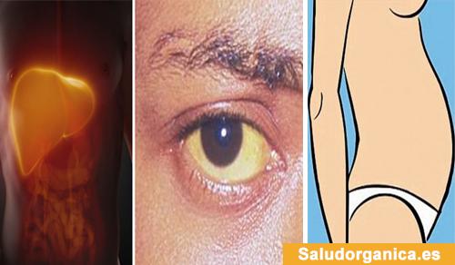 primeros signos de daño hepático