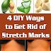 4 DIY Ways to Get Rid of Stretch Marks