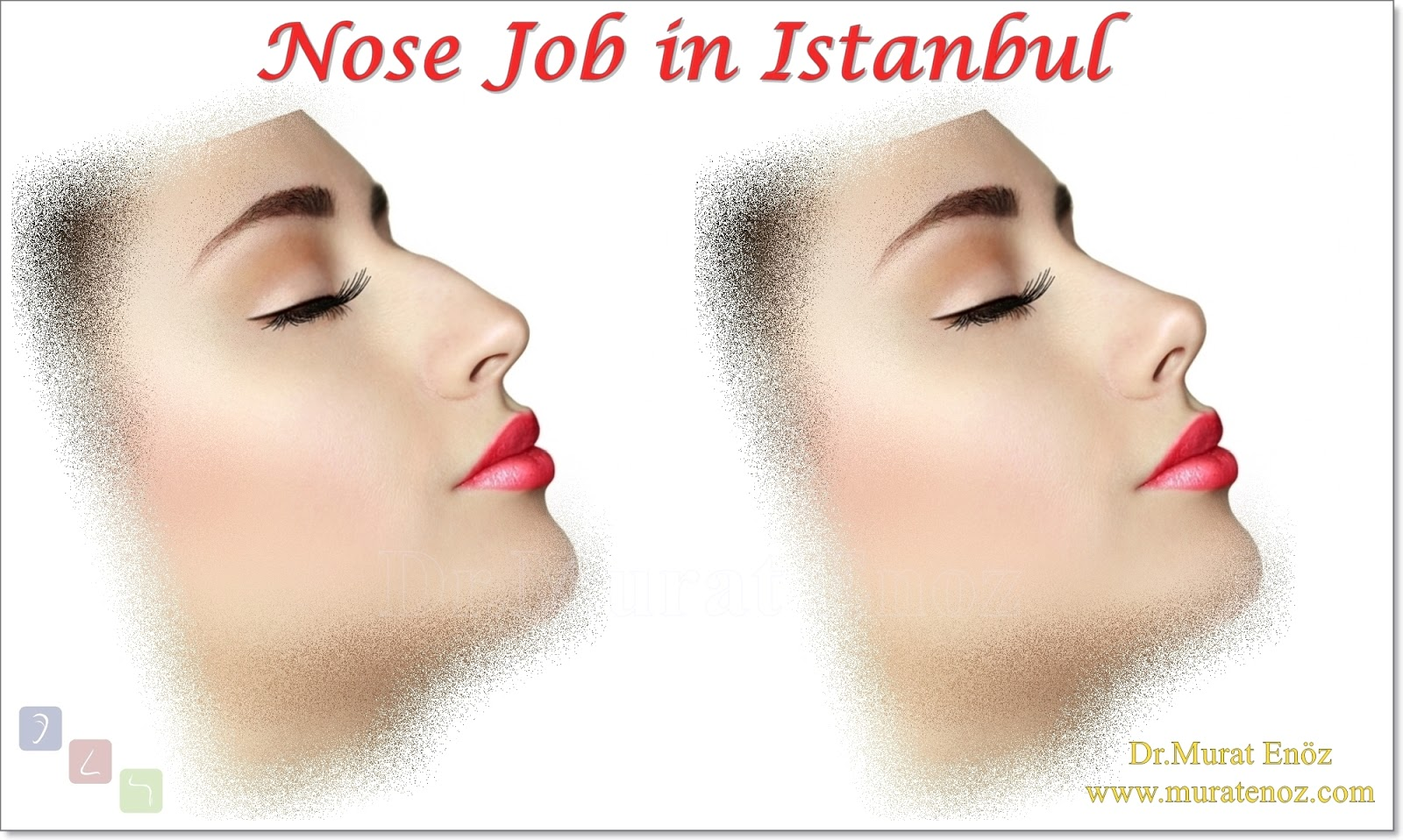 Nose Job in Turkey