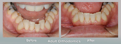 Miami prosthodontist and adult braces