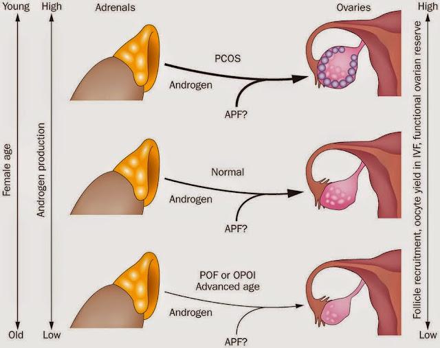 Hormon Androgen Tinggi Pada Wanita PCOS