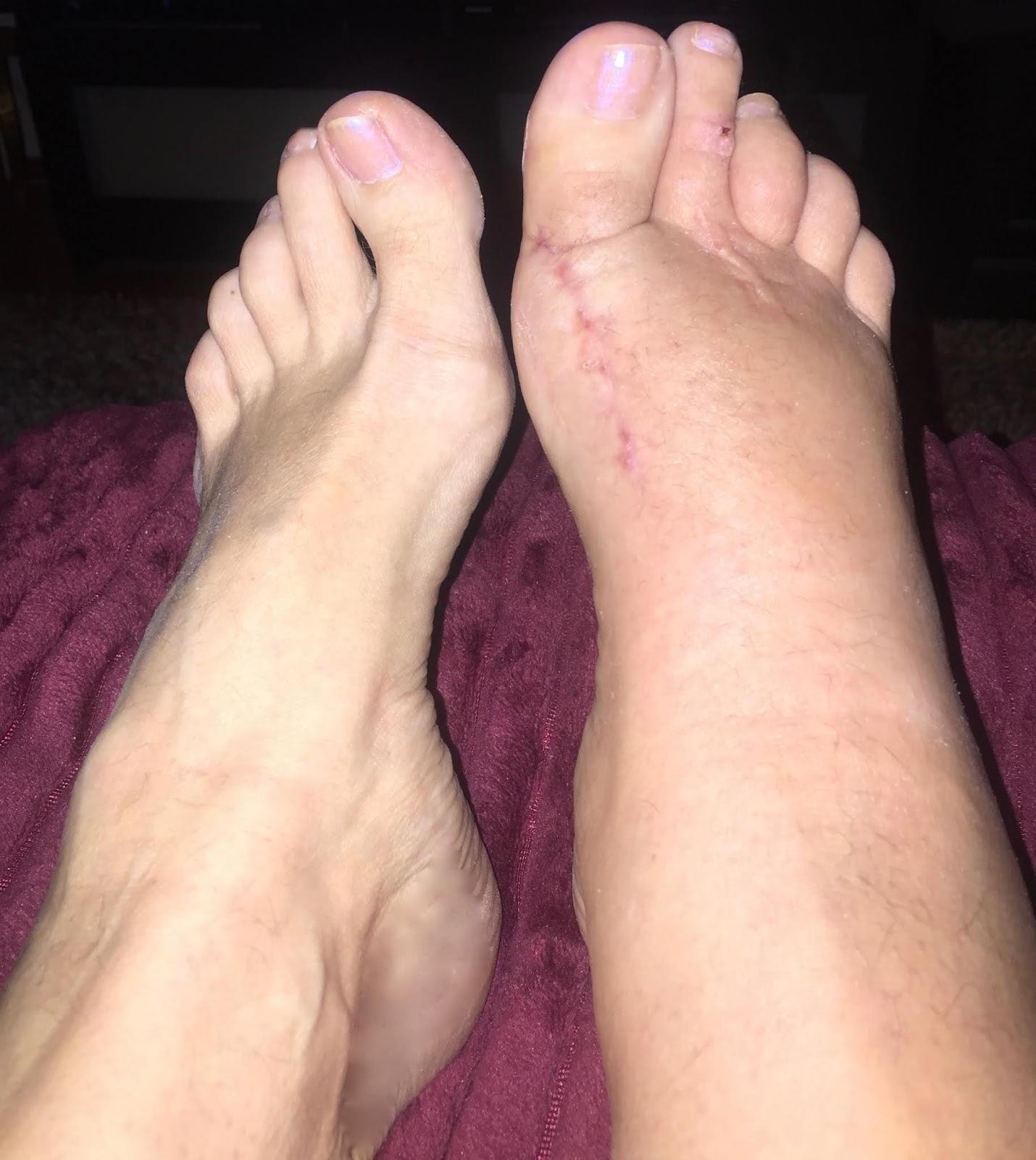 svullna fötter efter operation