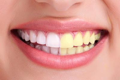 Un dentifrice maison pour avoir les dents blanches