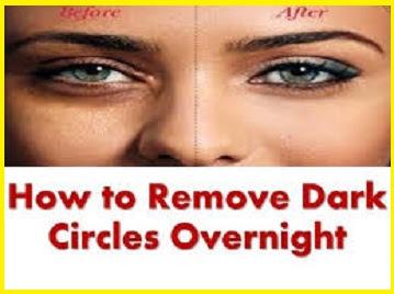 homemade-cream-for-dark-circle
