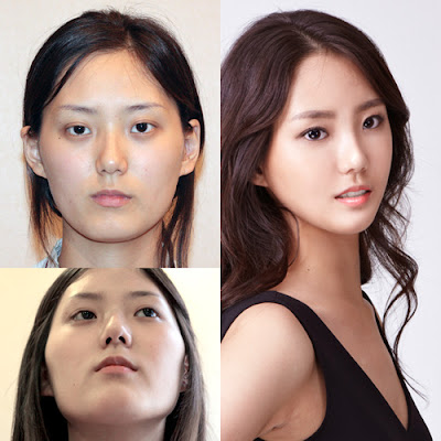 Foto V Shape Korea Trend Kecantikan Terbaru Wajah Segitiga Terbalik