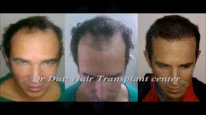 http://www.drdutthairtransplant.com/hair-transplant-in-south-delhi/