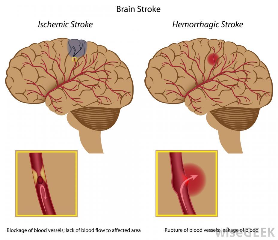 Obat Herbal Stroke Ringan: Obat Herbal Gejala Stroke Ringan